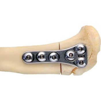 Plate, tibial wedge, 26mm to use w/ 2mm screw