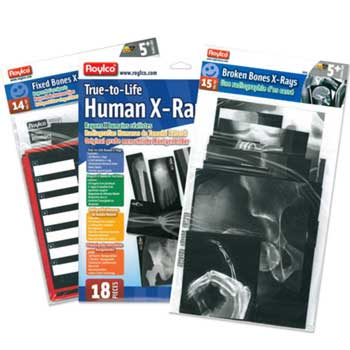 Set of Three X-Ray Sets